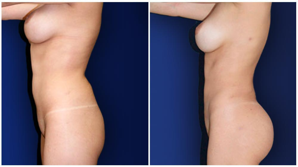 Los Angeles Liposuction Specialty Clinic -  Fat Transfer to Buttocks Patient