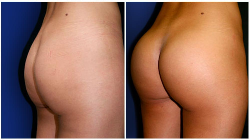 Differences in Volume - of a Brazilian Butt Lift Augmentation Patient