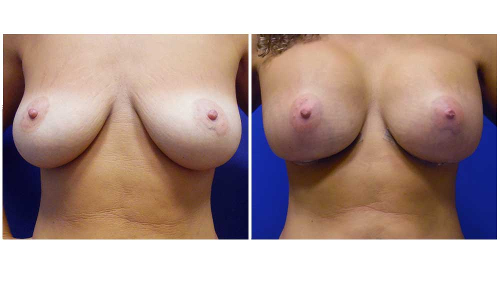 Fat Transfer Breast Augmentation Patient (32Years)
