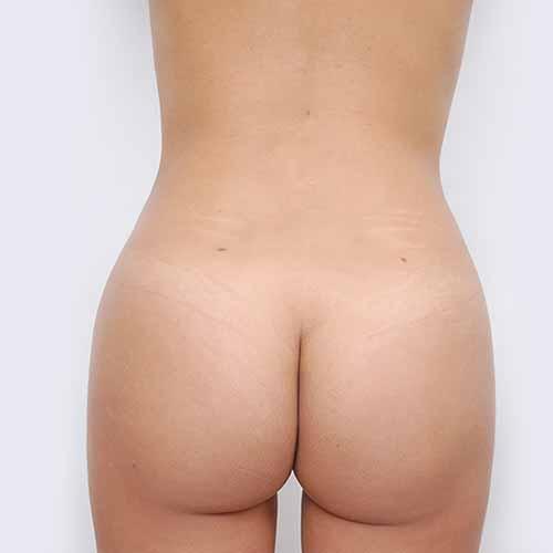 Brazilian Butt Lift Patient - After Picture