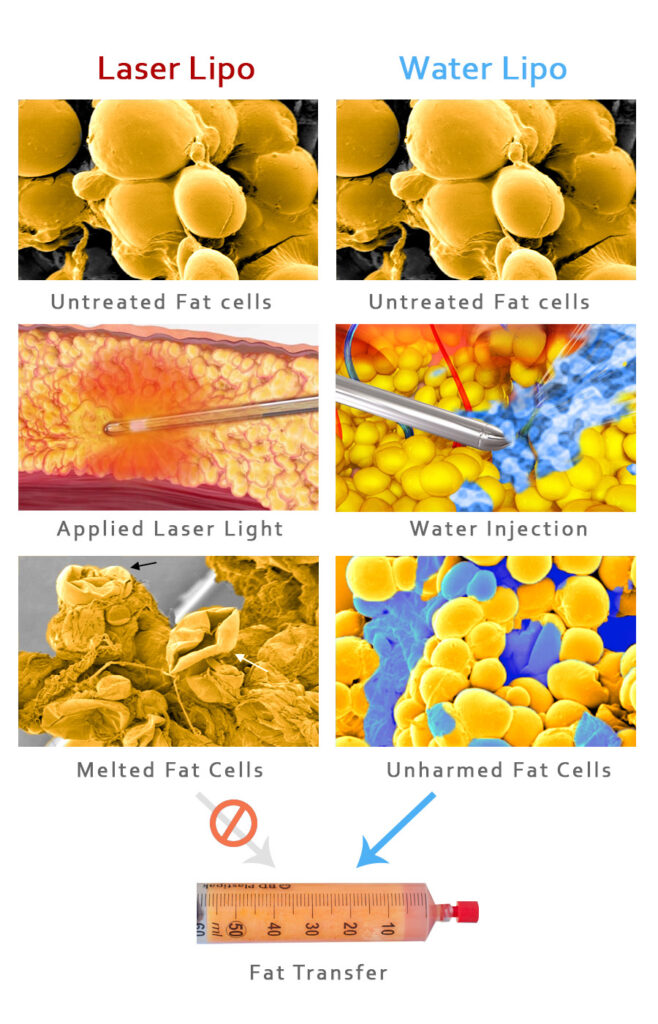 Differences between Laser Assisted and Water Assisted Liposuction. Melting vs Dislodging Fat Cells.
